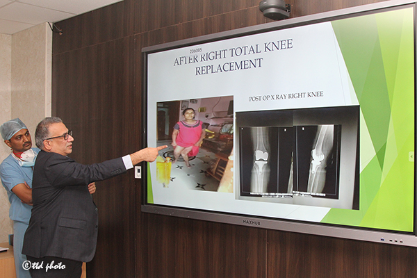 Knee Replacement Press Meet2